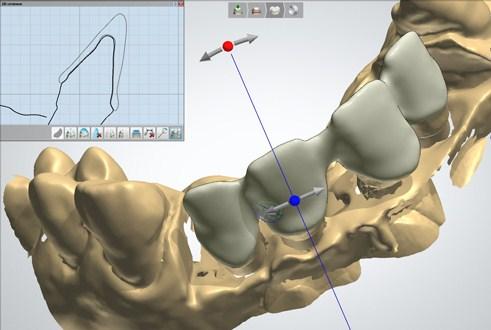 Cam технология зубы